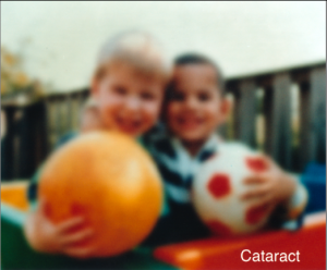 Cataract Example