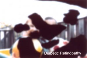 Diabetic Retinophathy Example