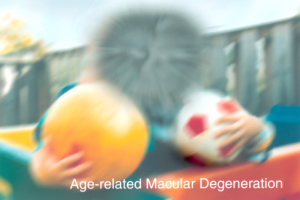 Age related Macular Degeneration Example
