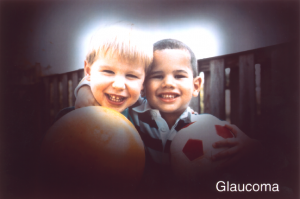 Glaucoma Example