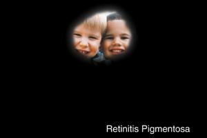 Retinitis Pigmentosa Example